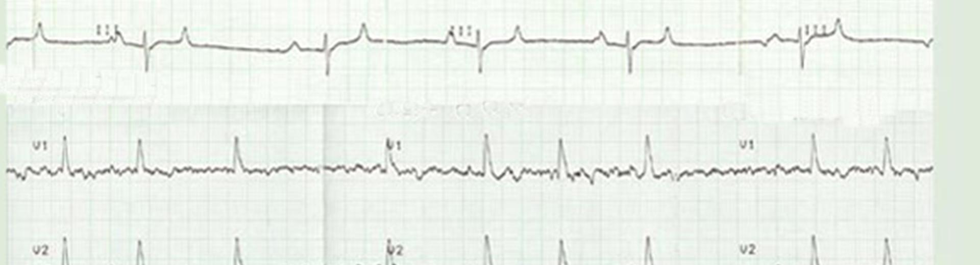 Herzultraschall